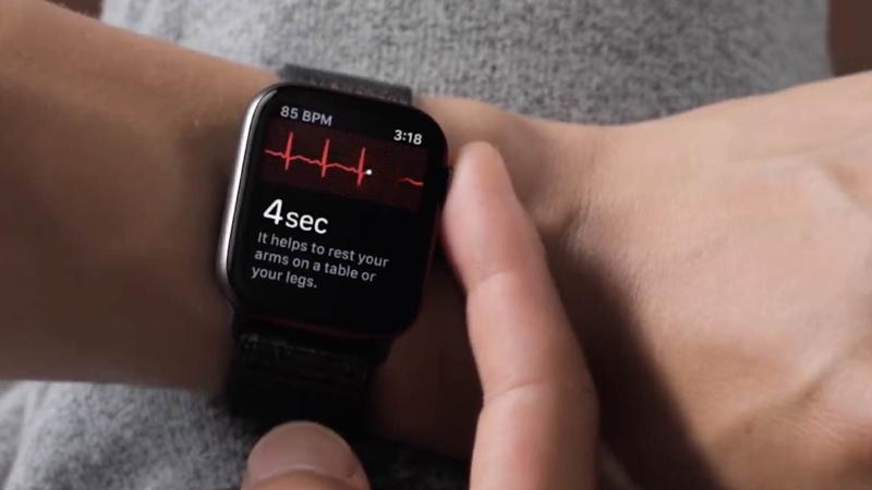 苹果的Apple Watch Series 4感应器直接测量人体的心电图
